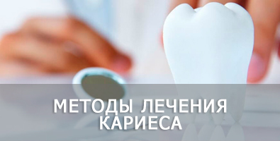 Кариес: причины возникновения, лечение и профилактика