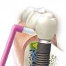 Зубная щетка монопучковая CS 1009