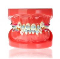Модель челюсти с керамическими брекетами HTS-B1-03