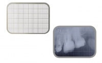 Сетка миллиметровая для рентгенпленки, комплект 2 шт. (YDM)