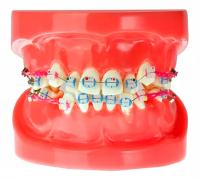 Модель демонстрационная ортодонтическая с керамическими брекетами HTS-B1-03