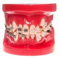 Модель демо ортодонтическая с керамическими и металлическими брекетами HTS-B4-02