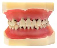 Модель демонстрационная (пародонт+ортопедия+ортодонтия) HST-L4