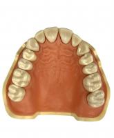Модель тренировочная со съёмными зубами (верхняя челюсть) HTS-A5-01U