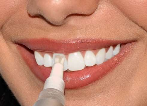 """Результат пошуку зображень за запитом """"отбеливание зубов"""""""